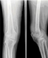 Knee Infection Caused By Candida Albicans Following A Knee Arthroscopy - A Case Report