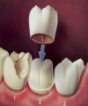Esthetic Restoration of Two Severely Decayed Maxillary Central Incisors: A Case Report